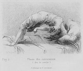 Paul Richer, Études cliniques sur le grande hystérie ou hystéro-épilepsie. Paris- Delahaye & Lecrosnier, 1881